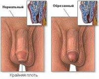 circumcision1.jpg