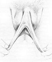 vulva6.jpg