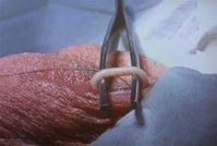 Bild-Vasektomie-2.jpg